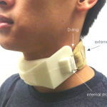 Photo of individual testing the fit of foam collar
